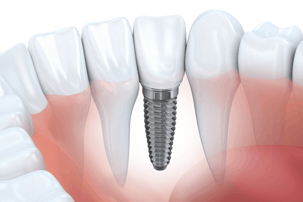 Learn about dental implant options