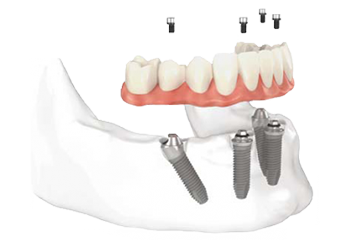 All-On-4® New Teeth in One Day