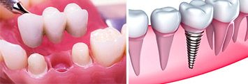 dental implant vs. dental bridge